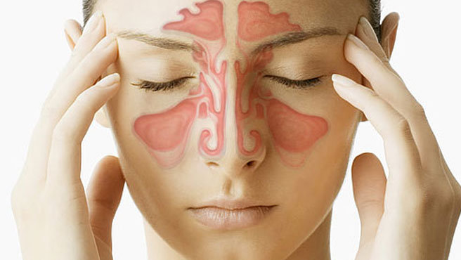 Sinus And Allergy
