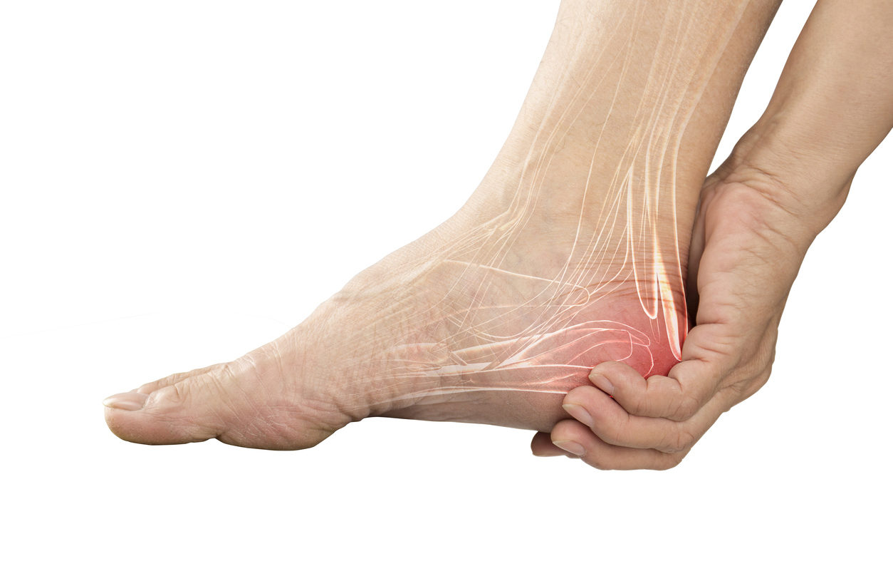 What is PLANTAR FASCIITIS?  (Everything you need to know about HEEL PAINS)