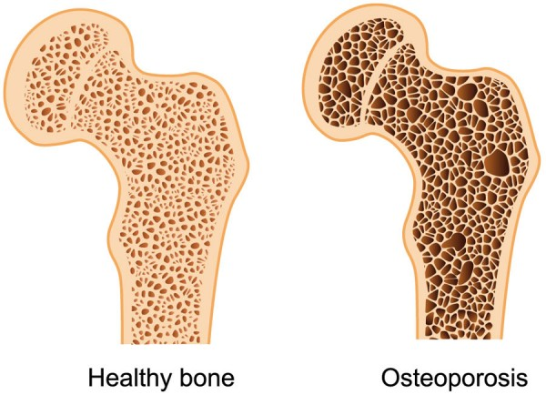 Win The Fight Against Osteoporosis
