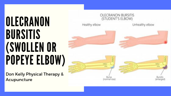 Olecranon Bursitis (Swollen or Popeye Elbow)