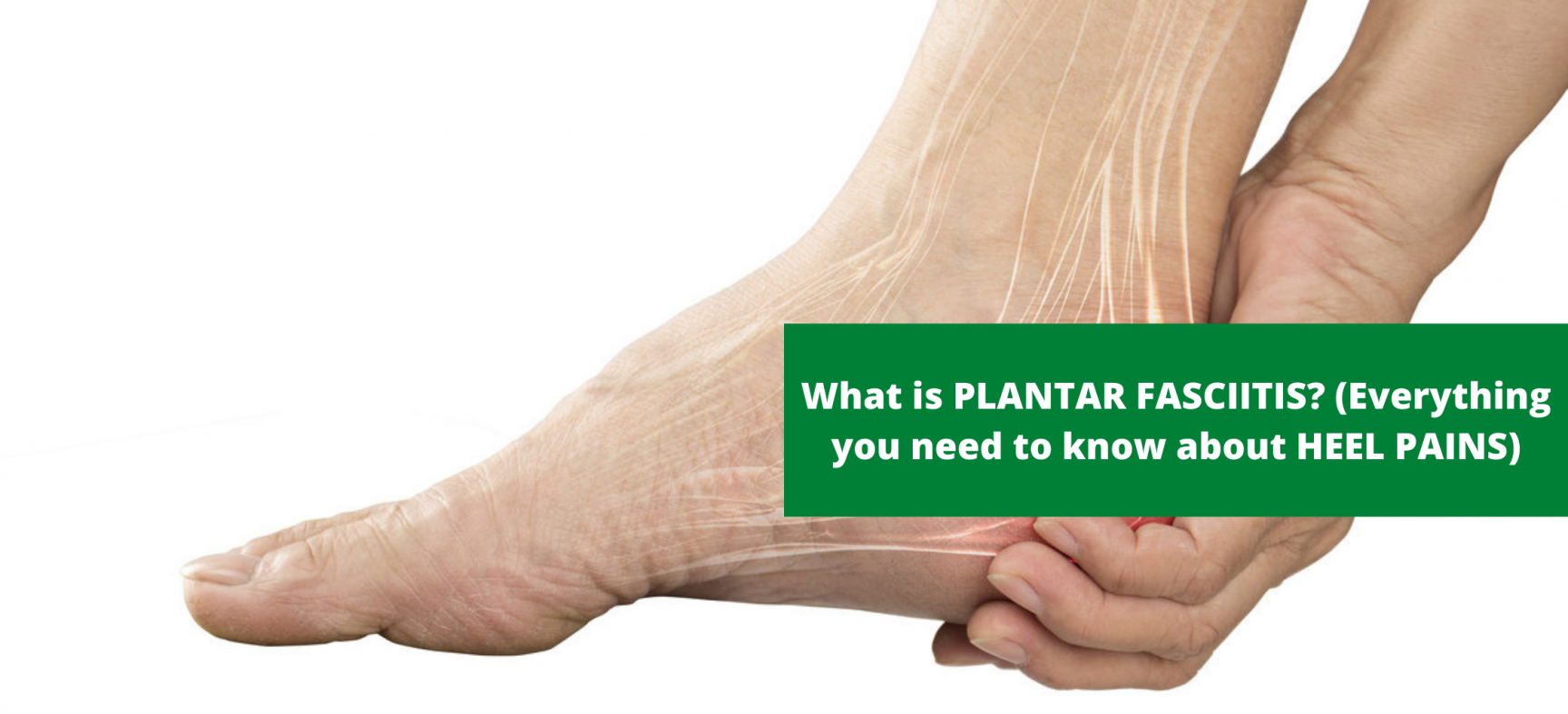 WHAT IS PLANTAR FASCIITIS? (EVERYTHING ABOUT HEEL PAINS)